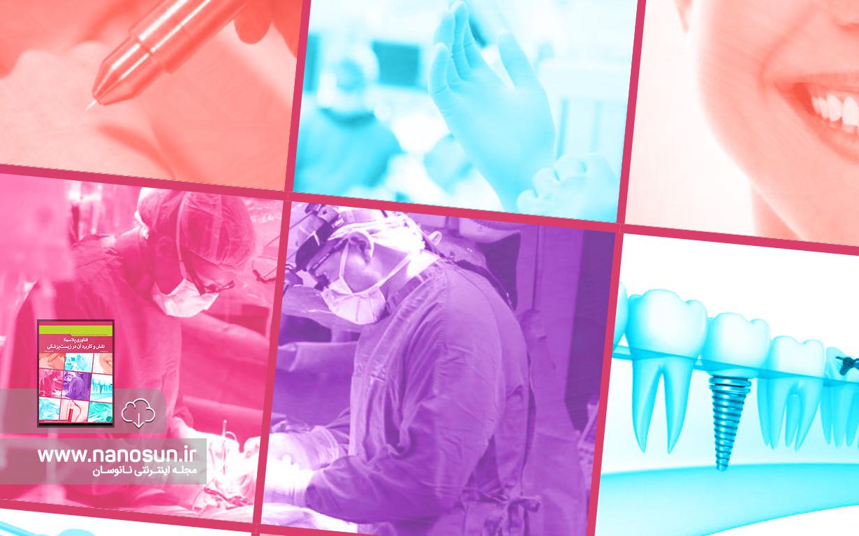 گزارش صنعتی فناوری پلاسما؛ نقش و کاربرد آن در زیستپزشکی
